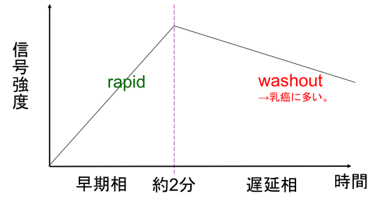 time intensity curve2