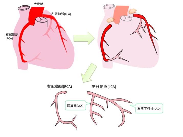 coronal-artery-001