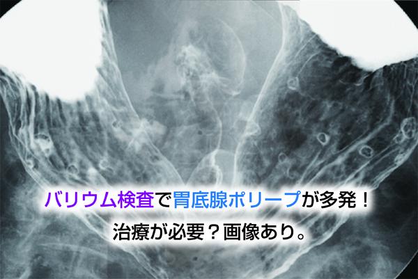 バリウム検査で胃底腺ポリープが