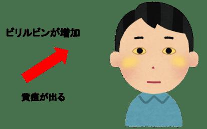 ビリルビン 黄疸