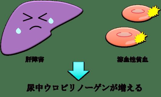 urinary urobilinogen1