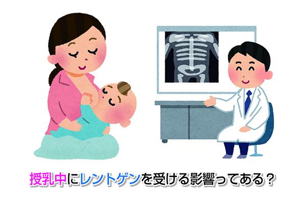 授乳中にレントゲンを受ける