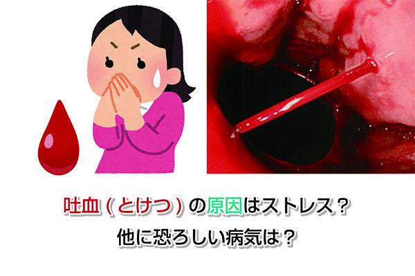 Cause of Hematemesis Eye-catching image