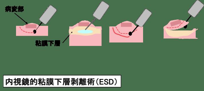 Endocscopic Submucosal Dissection