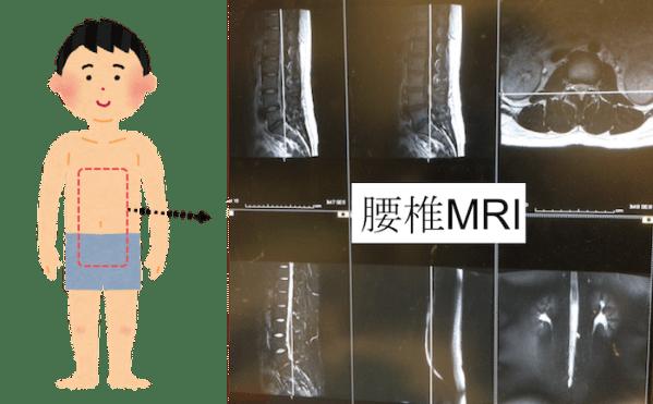 lumbar mri findings