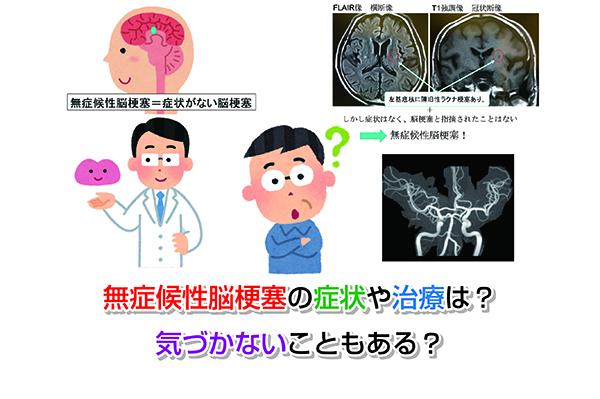 Asymptomatic cerebral infarction Eye-catching image