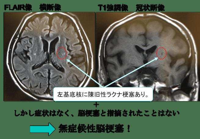 asymptomatic cerebral infarction mri findings