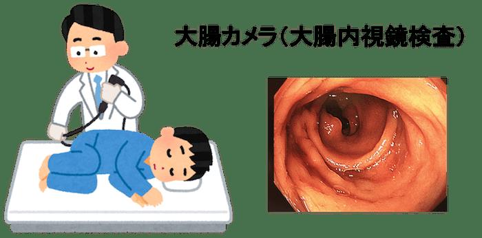 colon fiber figure1