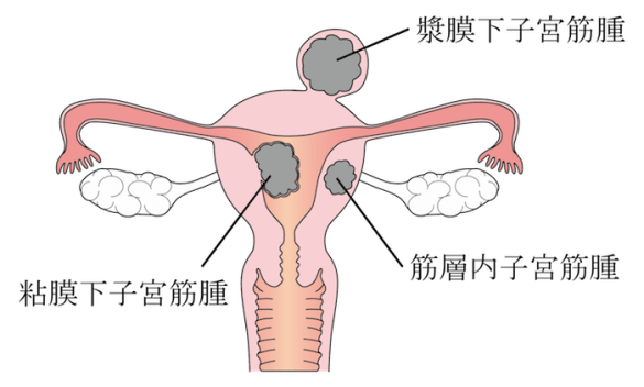 kinds of uterus myoma