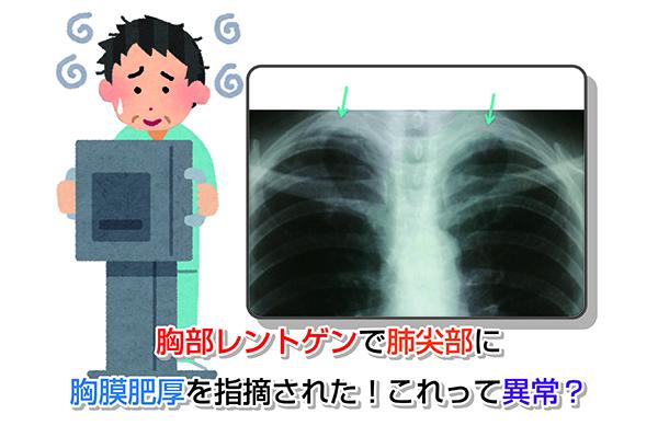 胸部レントゲンで肺尖部に