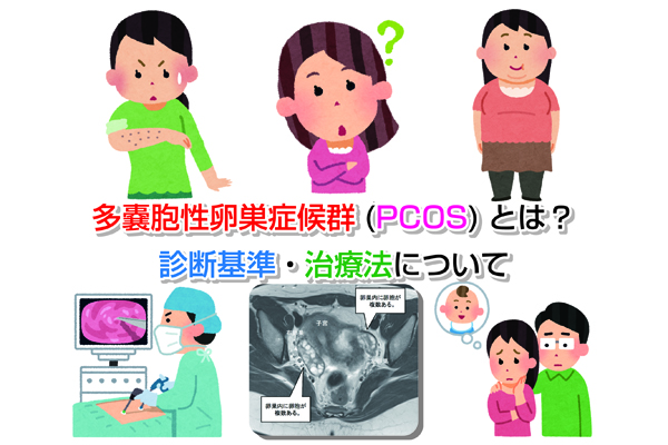 PCOS Eye-catching image