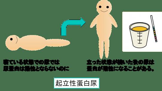 orthostatic albuminuria figure