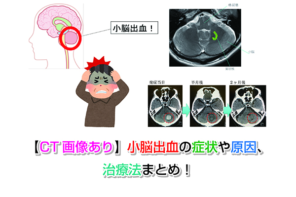 Symptoms of small cerebral hemorrhage Eye-catching image