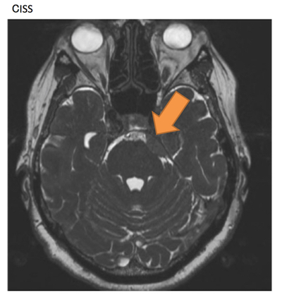 meningioma002