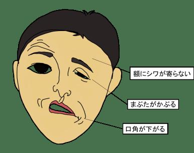 facial-palsy