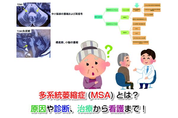 MSA Eye-catching image
