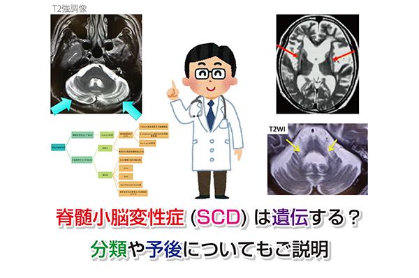 Spinocerebellar degeneration Eye-catching image