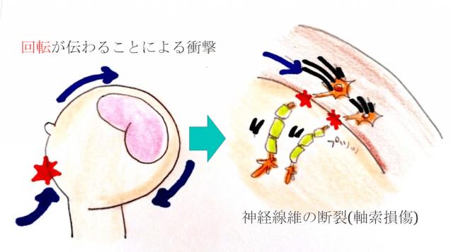 diffuse axonal injury figure1