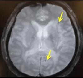 doc1 amiroidoangiopati