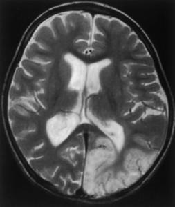 doc1-mitochondrial-encephalomyopathy