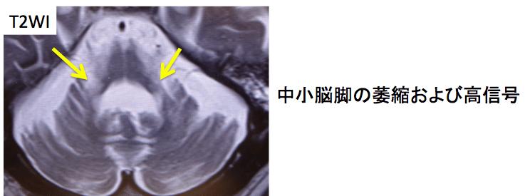 doc1-multiple-system-atrophy-1