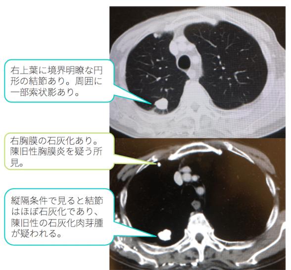 lung-nodule-calc-ct-findings4