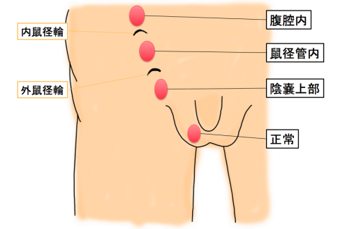 Undescended testes