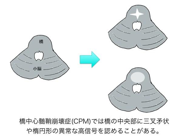 cpm-001