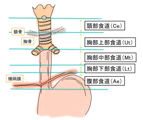 esophageal-cancer