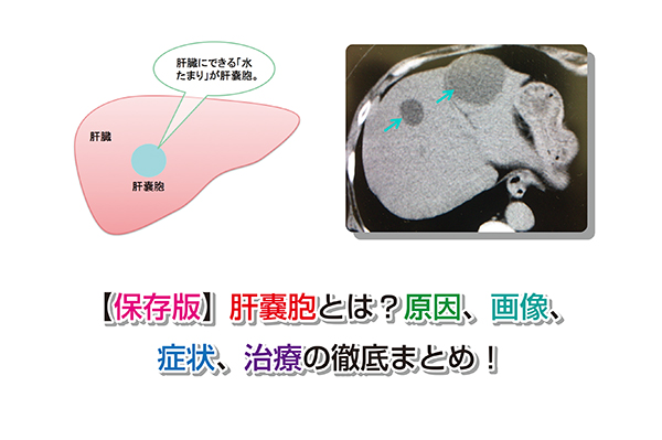 Liver cyst Eye-catching image
