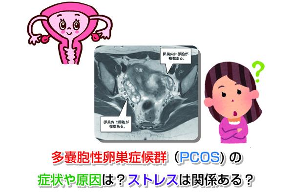 PCOS Eye-catching image