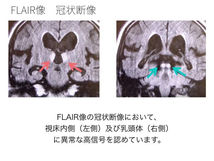wernickes-encephalopathy-002