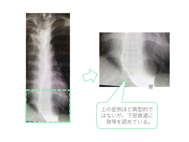 esophageal-achalasia