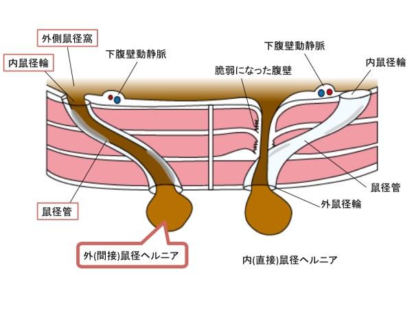 external-hernia