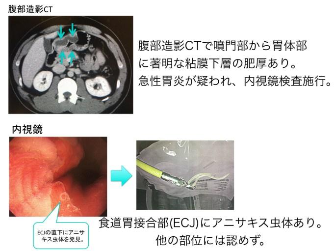 acute-gastric-mucosal-lesion-001