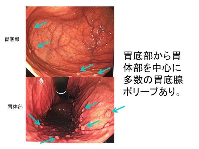 gastric-polyp-001