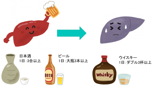 Alcoholic liver injury 1