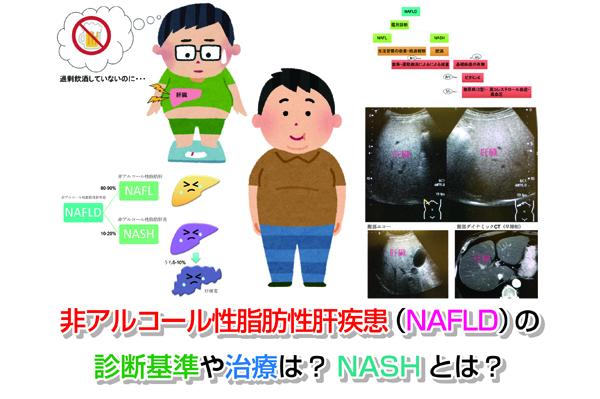 NAFLD Eye-catching image