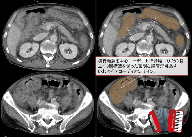 pseudomembranous-colitis-ct-findings