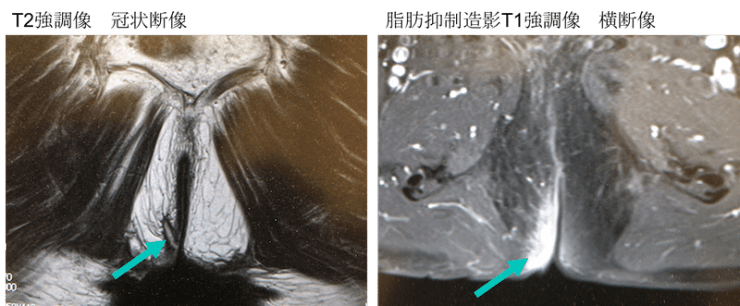 anal fistula MRI findings1