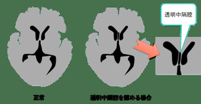 avus septum pellucidum figure