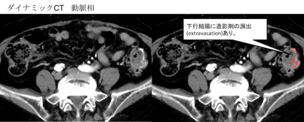 colonic-diverticular-hemorrhage-ct-findings2