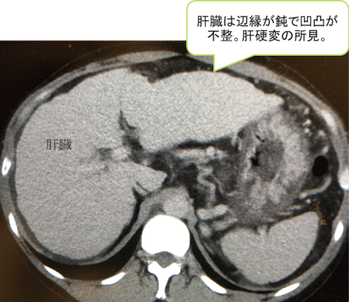liver cirrhosis CT findings