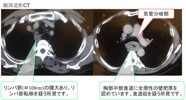 Esophageal cancer CT findings1