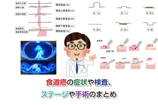 Esophageal cancer Eye-catching image