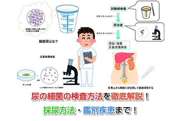 Examination of the urine of bacteria Eye-catching image