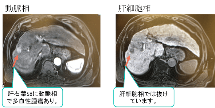 HCC mri findings1