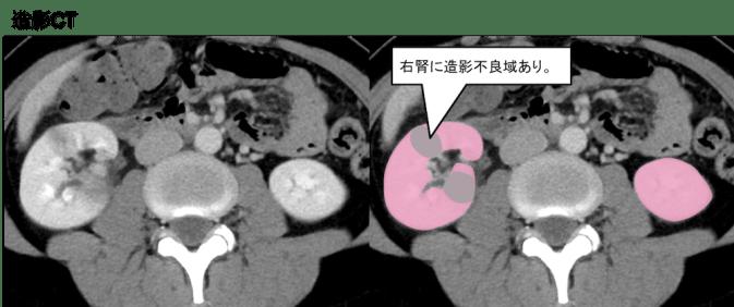 Pyelonephritis CT findings4