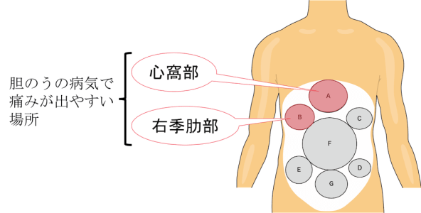 pain location of gallbladder disease