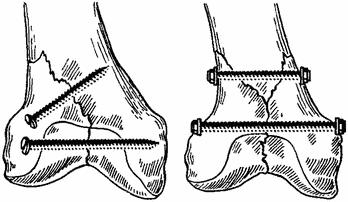 Остеосинтез большеберцовой кости пластиной и штифтом: операция по удалению, реабилитация, когда можно ходить